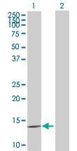 Western blot - beta glucuronidase  pseudogene  antibody (ab67961)