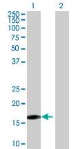 Western blot - LOC83459 antibody (ab67976)