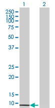 Western blot - UBE2Q1 antibody (ab67981)