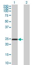 Western blot - RNF166 antibody (ab67983)