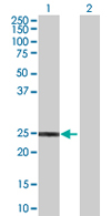 Western blot - HECTD3 antibody (ab67985)