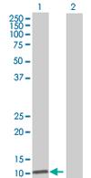 Western blot - MRPS6 antibody (ab67988)