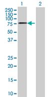 Western blot - WDR79 antibody (ab67994)