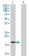 Western blot - PPP1R1C antibody (ab67995)