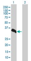 Western blot - SUN1 antibody (ab67999)