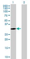Western blot - SNRPN antibody (ab68000)