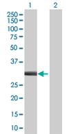 Western blot - UBE2Z antibody (ab68001)