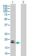 Western blot - Calmodulin 3 antibody (ab68005)