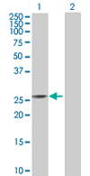 Western blot - C14orf124 antibody (ab68006)