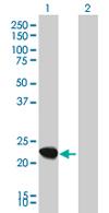 Western blot - MRPS10 antibody (ab68007)