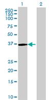 Western blot - LMOD1 antibody (ab68009)
