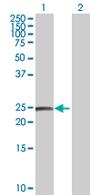 Western blot - OTUB2 antibody (ab68010)