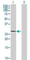 Western blot - ATP6V1E2 antibody (ab68011)