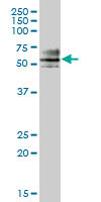 Western blot - ZNF468 antibody (ab68014)