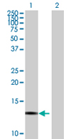 Western blot - FBXW9 antibody (ab68018)