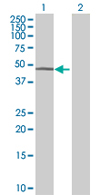 Western blot - ATAD2 antibody (ab68019)