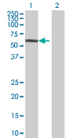 Western blot - NPLOC4 antibody (ab68020)