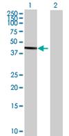 Western blot - PPP1R7 antibody (ab68021)