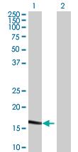 Western blot - MARCH2 antibody (ab68022)