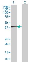 Western blot - B3GAT3 antibody (ab68026)