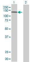 Western blot - MAN2B1 antibody (ab68033)