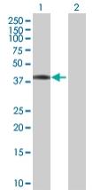 Western blot - SERTAD2 antibody (ab68037)