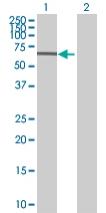 Western blot - ZNF319 antibody (ab68049)