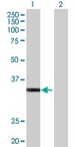 Western blot - HOXD1 antibody (ab68052)