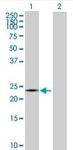 Western blot - C1orf83 antibody (ab68054)