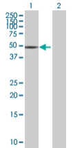 Western blot - XYLB antibody (ab68055)