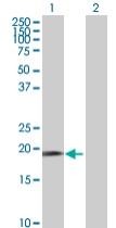 Western blot - DUSP21 antibody (ab68057)