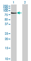 Western blot - RIOK2 antibody (ab68059)