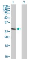 Western blot - NEK7 antibody (ab68060)