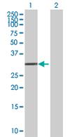 Western blot - TRIM72 antibody (ab68061)
