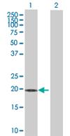 Western blot - MBD3L1 antibody (ab68062)
