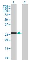 Western blot - PROP1 antibody (ab68065)
