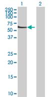 Western blot - IPPK antibody (ab68066)