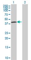 Western blot - FBXO31 antibody (ab68067)