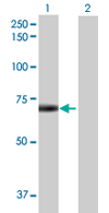 Western blot - DTX2 antibody (ab68070)