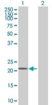 Western blot - FKBP11 antibody (ab68087)