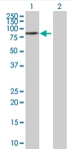 Western blot - PABPC3 antibody (ab68090)