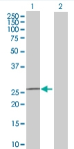 Western blot - FKBP14 antibody (ab68091)