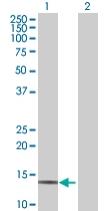 Western blot - MGST3 antibody (ab68092)