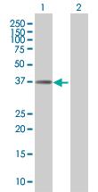 Western blot - ZNF783 antibody (ab68112)