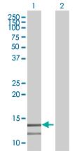 Western blot - PCBD2 antibody (ab68113)