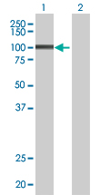 Western blot - L3MBTL3 antibody (ab68117)