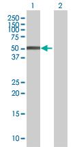 Western blot - ZFP200 antibody (ab68118)