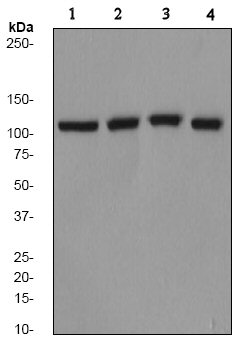Western blot - Vesicle docking protein p115 antibody [EPR2140Y] (ab68137)