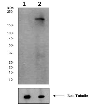 Western blot - Anti-160 kD Neurofilament Medium (phospho S614 + S619) antibody [EPR580(2)Y] (ab68142)