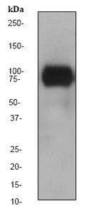 Western blot - TLR2 antibody [EPR2078Y] (ab68159)